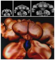 Extreme Muscularity Syndrome - Result by n-o-n-a-m-e