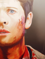 That Hurts by alice-castiel