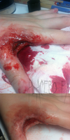 Cleaned Wound by PlaceboFX