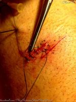 Play piercing and sutures by TheChristOff