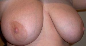 My Breast Side by SusanRick