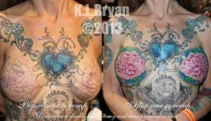 Double mastectomy scar coverup by danktat