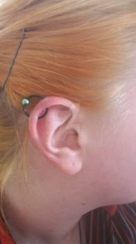 Helix orbital healed. c: by Blondefishy