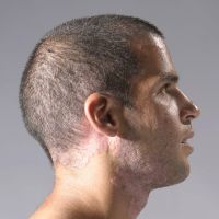 male portrait with Psoriasis by shharc