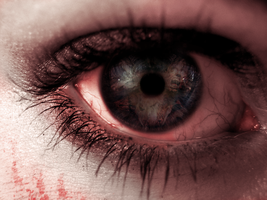Infected eye by Dark-Fayt