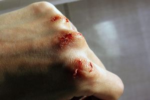 Abrasion by RossMakeup