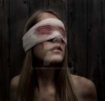Tortured to Blindness by NiKaZiNhA